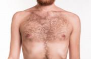 lông ngực, nam giới, nhiều, khắc phục, tẩy lông, triệt lông, nguyên nhân, testosterone, di truyền, căng thẳng, cuasotinhyeu