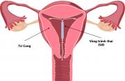 phát hiện thai sớm, vòng tránh thai, biện pháp tránh thai, siêu âm thai