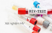 hiv , lây truyền hiv, xét nghiệm hiv, biểu hiện hiv, tiểu buốt, đau dạ dầy
