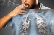 lao phổi, hút thuốc, chức năng phổi suy giảm, phác đồ lao, chế độ dinh dưỡng, cuasotinhyeu