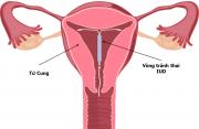 biện pháp tránh thai, vòng tránh thai, thuốc tránh thai, hiệu quả tránh thai