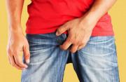 Có nên tự điều trị tại nhà khi bị ngứa vùng gần bìu không ?