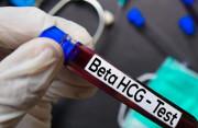 Nồng độ hCG sau điều trị thai ngoài tử cung có thể tăng lại không ?