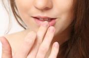 Đốm trắng ở phần môi phía trong có gây ra nguy hiểm không ?