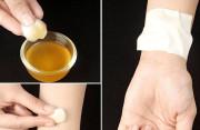 Tác dụng phụ của phương pháp tẩy nốt ruồi bằng tỏi là gì ?