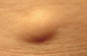 Nổi cục cứng ở vùng xương chậu gần mông là dấu hiệu của gì ?
