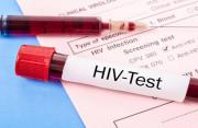 Xét nghiệm HIV âm tính sau 20 ngày liệu đã có thể yên tâm chưa ?