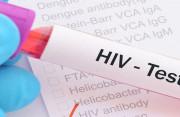 Xét nghiệm SD HIV 1/2 3.0 lúc 3 tháng đã cho kết quả chính xác chưa ?