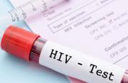 Vẫn lo lắng dù xét nghiệm HIV sau 6 tháng có kết quả là âm tính !