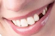 Có nên điều trị mất răng bẩm sinh bằng cấy ghép xương răng Implant?