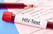 Xét nghiệm HIV 10 tháng âm tính liệu đã đủ yên tâm???