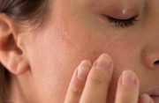"""Da mặt bị rát và """"trắng trắng"""" sau 3 ngày dùng kem trị mụn..."""