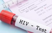 Các trung tâm CDC sử dụng phương pháp gì để xét nghiệm HIV?