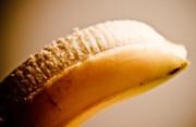 Bao quy đầu dài có ảnh hưởng tới sức khỏe sau này không?