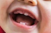 Đã được 18 tháng tuổi nhưng con mới chỉ có 4 răng!!!