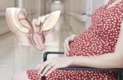 Lòng tử cung có ít dịch khi đang mang thai!!!