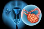 Có thể canh trứng khi đang có nang cơ năng buồng trứng không?