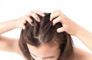 Sinh nở xong da đầu bỗng trở nên ngứa ngáy dù không có gầu?