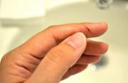 Nguy cơ lây nhiễm HIV khi vô tình cấu bạn chảy máu?