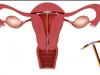 tránh thai, vòng tránh thai, biện pháp, tuột dây vòng, cuasotinhyeu.