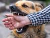 chó nhà cắn, tiêm phòng dại, tay, rướm máu, 15 ngày, sau 15 ngày, phát bệnh,cuasotinhyeu