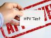 hpv, xét nghiệm, kiểm tra, u nhú, chẩn đoán, sùi mào gà, dương tính, âm tính, chỉ số, giải thích, ung thư, cuasotinhyeu