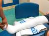 Tại sao phải tiến hành bó bột sau mổ ghép xương ?